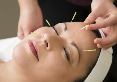 agopuntura e medicina estetica